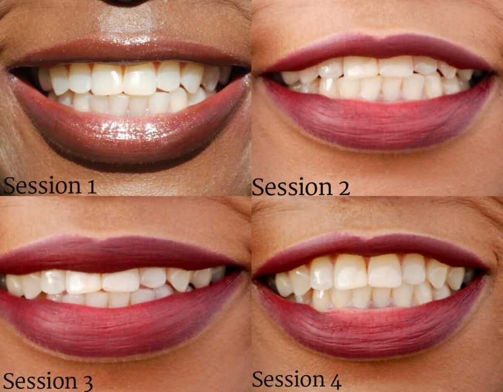 smile brilliant, at home teeth whitening, teeth whitening, how to whiten teeth at home, style my dreams, smile brilliant review, after pictures